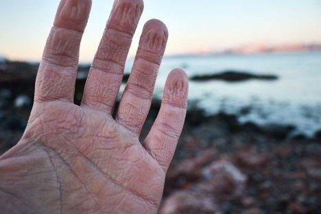 Martins hands after a day in his gloves